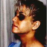 Karla Homolka z podbitym  przez męża okiem